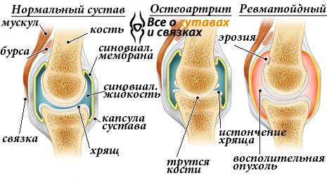 Лечение болей в коленных суставах узи тазабедренных суставов