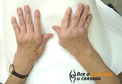 Заболевание суставов рук сколько стоят уколы в сустав отзывы