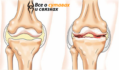Артроз коленного сустава: симптомы и действенное лечение