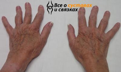 Артроз пальцев рук: симптомы, лечение и основные причины