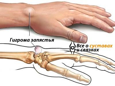 Выпуклость на кистевом суставе супинацию плечевого сустава обеспечивают следующие мышцы