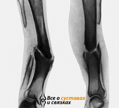 Ложные суставы мениск коленного сустава, заживление